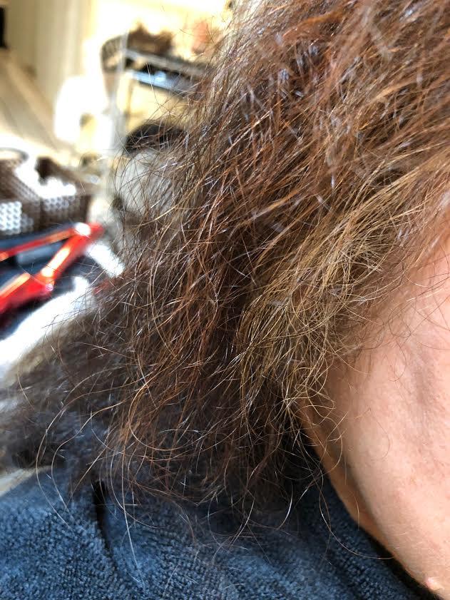 ダメージ毛髪
